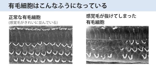 音は蝸牛の中にある有毛細胞で感じます